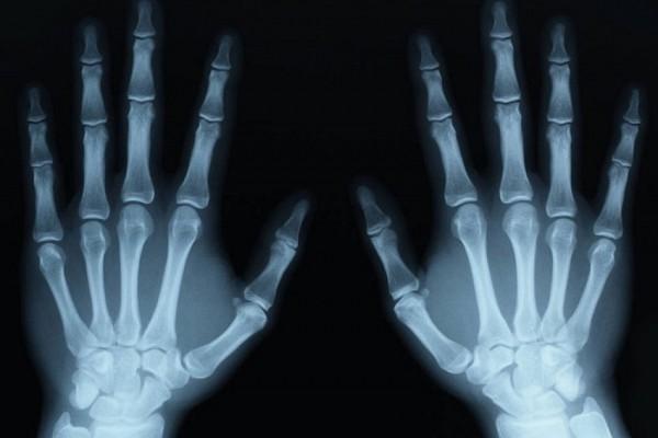 test osseux non fiables mineurs isolés
